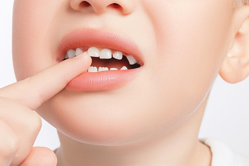 молочные коренные зубы у детей